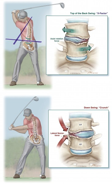 Golf swing lumbar